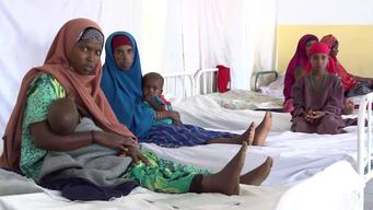 12280 Somalia Malnutrition SELECT BROLL HD PAL